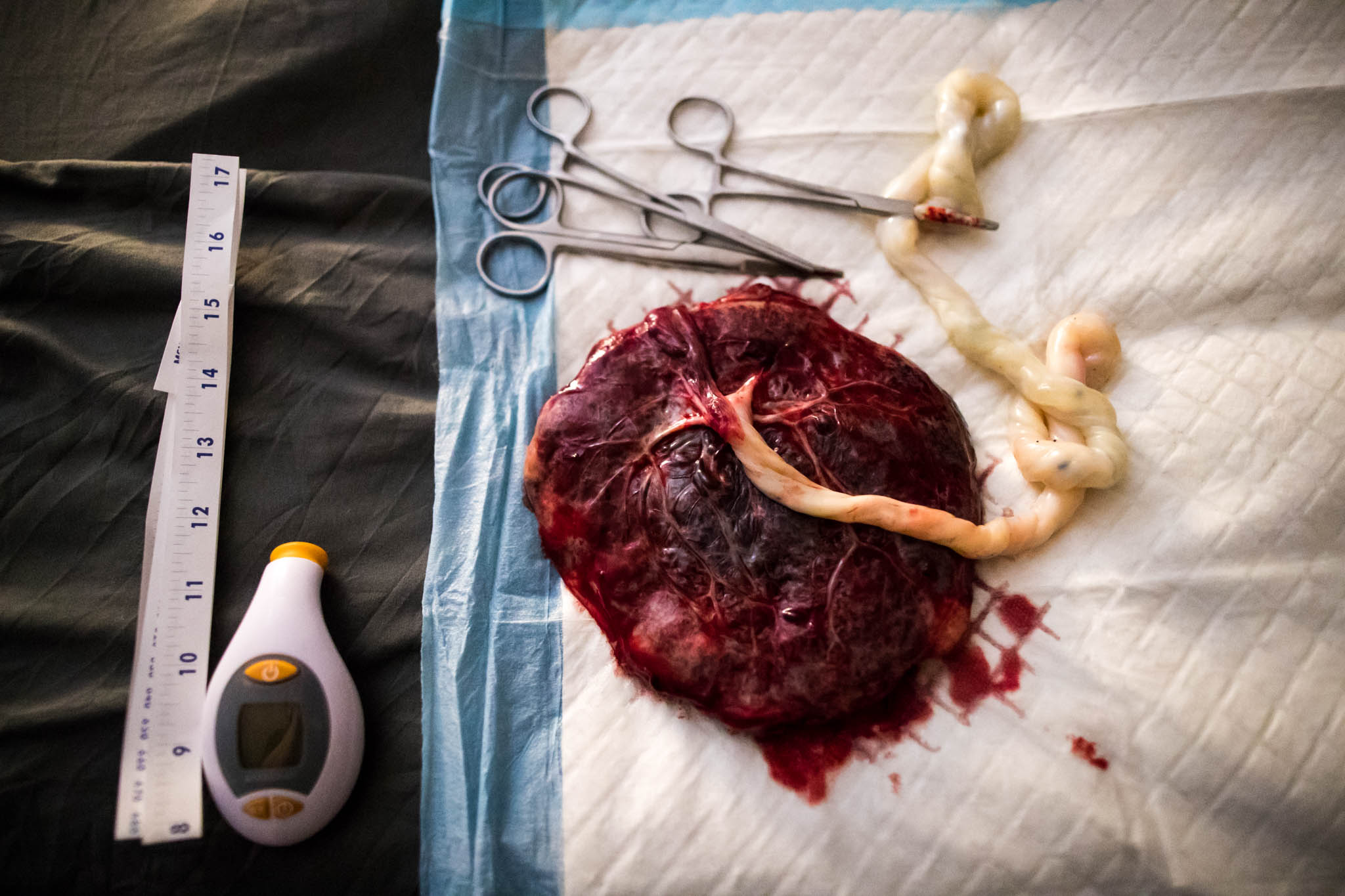 a birth photographer in dallas and forth worth texas, Lawren Rose Photography, takes a photograph of a placenta surrounded by home birth tools and newborn exam tools during a home birth
